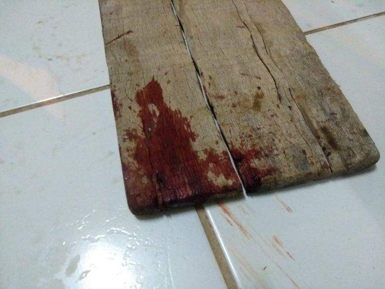 Carmo do Paranaíba: Mulher sofre tentativa de homicídio ao ser agredida com golpes na cabeça
